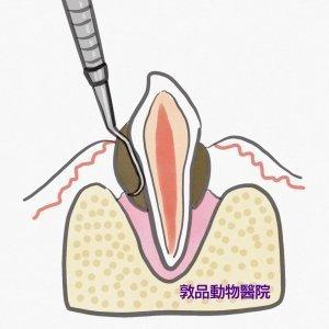 狗牙齒使用牙齦下刮刀清潔牙結石