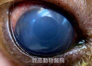角膜水腫 藍眼症